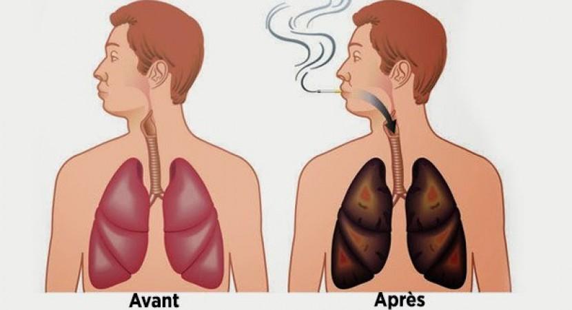 ces-aliments-nettoient-vos-poumons-de-la-nicotine-et-des-goudrons-830x450