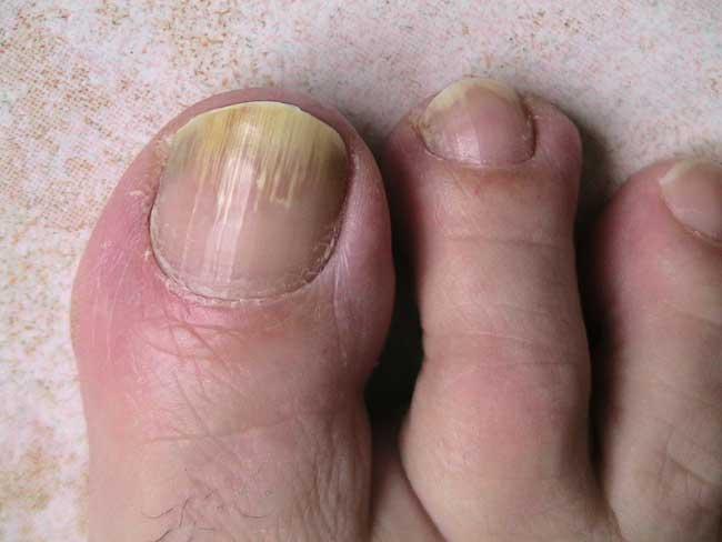 mycose aux ongles de pieds