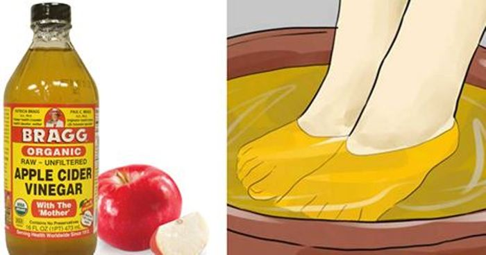 8 raisons de toujours avoir du vinaigre de pomme la maison. Black Bedroom Furniture Sets. Home Design Ideas