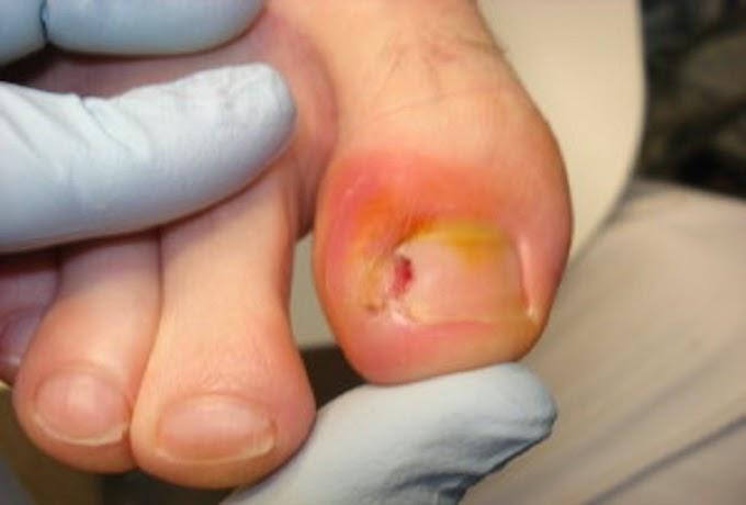 10 solutions pour venir a bout des ongles incarn s - Coupe des ongles de pieds ...