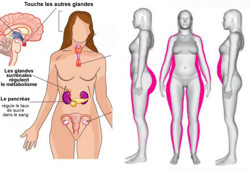 desequilibre hormonal femme