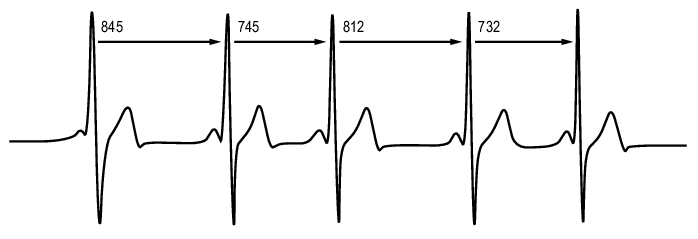 rythme-cardiaque